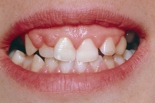 Hyperplasia of the upper gums is a consequence of long-term use of the drug phenytoin, prescribed to treat epilepsy. Overactive growth of the gums is a recognized side effect. Phenytoin is an anticonvulsant that reduces the severity of seizures in grand mal epilepsy. Photo credit: SPL / Photo Researchers, Inc.