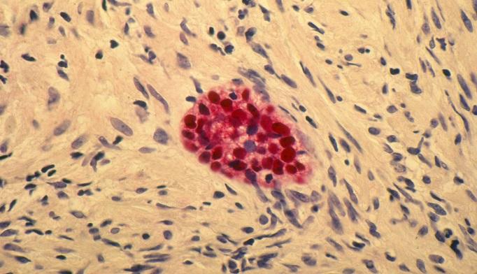 Prostate-specific Antigen Screening: Still Debated