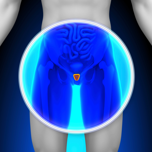 Use of ADT as primary therapy in low-risk prostate cancer seems increasingly ill advised.
