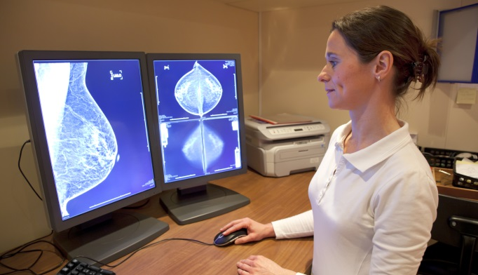 New Model May More Accurately Predict Breast Cancer Incidence