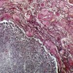 Randomized trial identifies potential first-line therapy for patients with non-clear cell renal cell