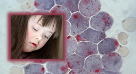 Leukemia Risk in Down Syndrome Patients
