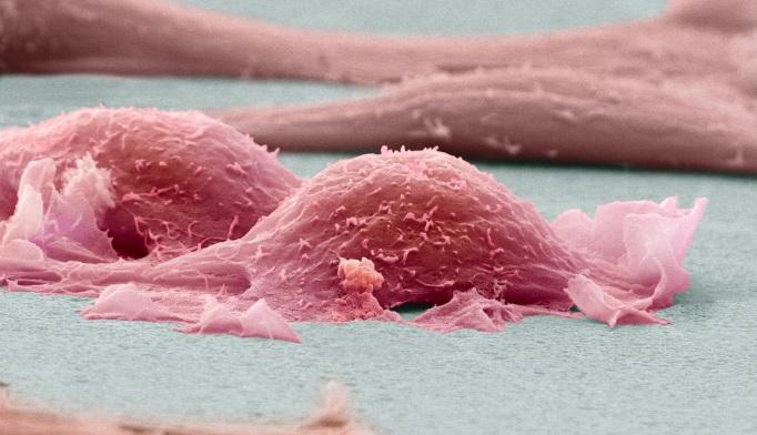 Doxorubicin-ifosfamide Combo Improves PFS in Soft Tissue Sarcoma