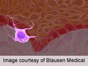 Vemurafenib, Dabrafenib Linked to Cutaneous Side Effects
