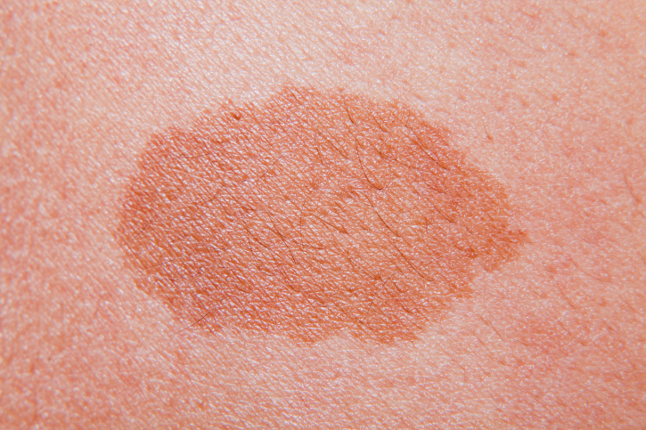 Higher c-reactive protein (CRP) is associated with worse survival in patients with melanoma.