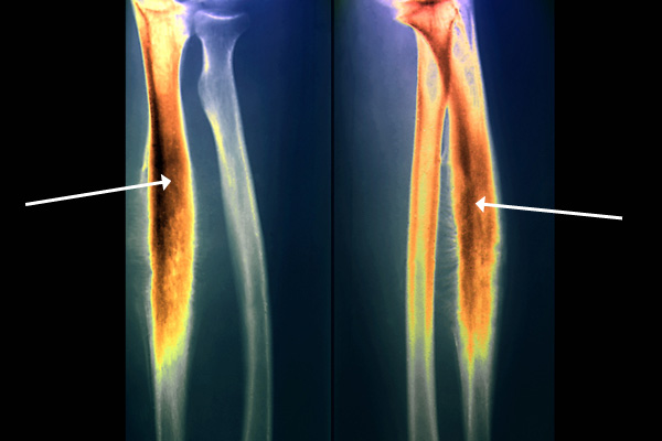 Colored x-rays of the forearm (frontal on left; profile on right) highlighting the Ewing sarcoma cancerous area (thick orange region) of radius.