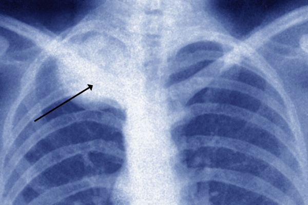 A frontal view X-ray of the thorax highlighting the Ewing sarcoma on the right.