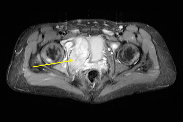 Horizontal section of the pelvic MRI scan in slide #4. The tumor began in the right pelvic bone.