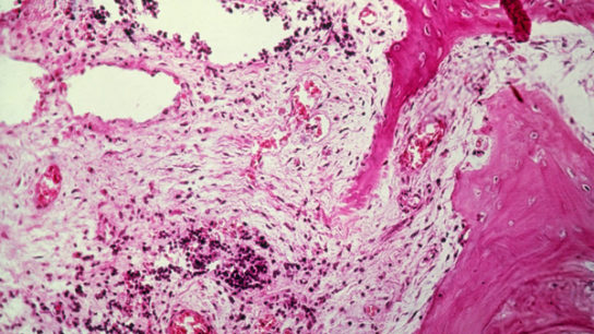 Histology slide of Ewing sarcoma in the femur.