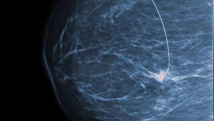 Study Refutes Long-held Assumption of Histologic Precursors of Breast Cancer