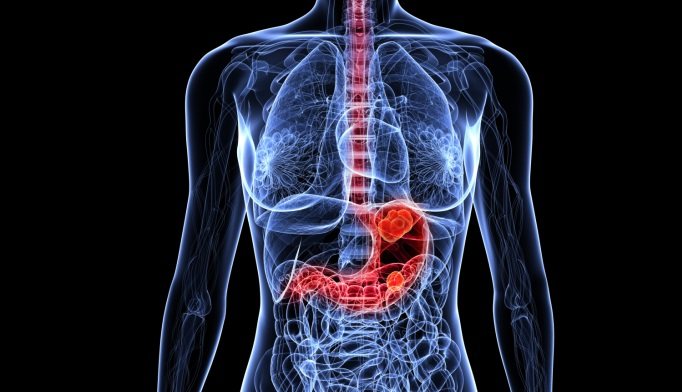 miniDOX Chemotherapy for Patients with Advanced Gastric Cancer