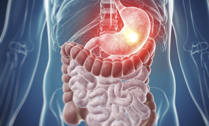 The Changing Landscape of Gastrointestinal Cancer Treatment