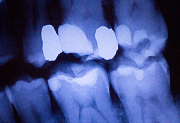 More studies are needed to determine the association between periodontal disease and non-Hodgkin lym