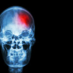 The combination of radiotherapy and immunotherapy for brain metastases is promising, though toxicity