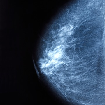 Authors of a modeling study recommend triennial mammography for 12% of women aged 50 years, and 20%