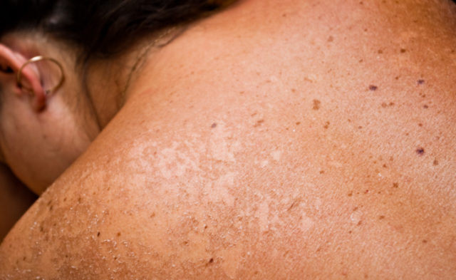A record number of new agents have been approved in the treatment of melanoma in the past 5 years.