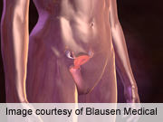 Laparoscopy Acceptable for Staging Uterine Cancer