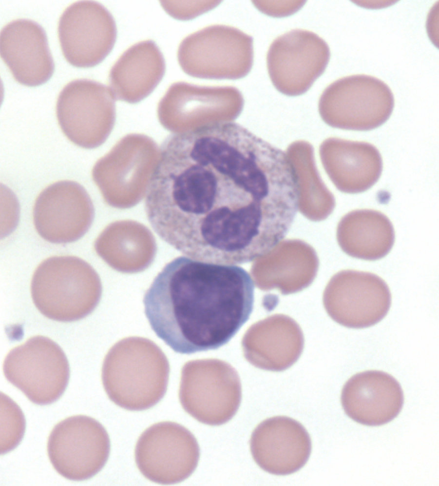 Leukocytosis Cancer Therapy Advisor