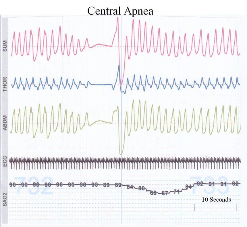 Apnea of prematurity - Cancer Therapy Advisor