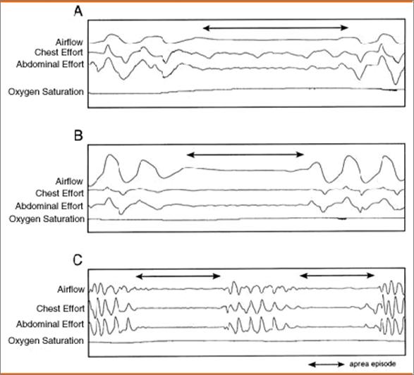 Obstructive sleep apnea - Cancer Therapy Advisor