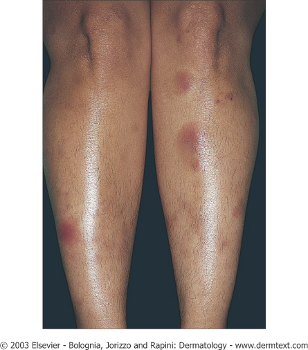 Erythema nodosum - Cancer Therapy Advisor