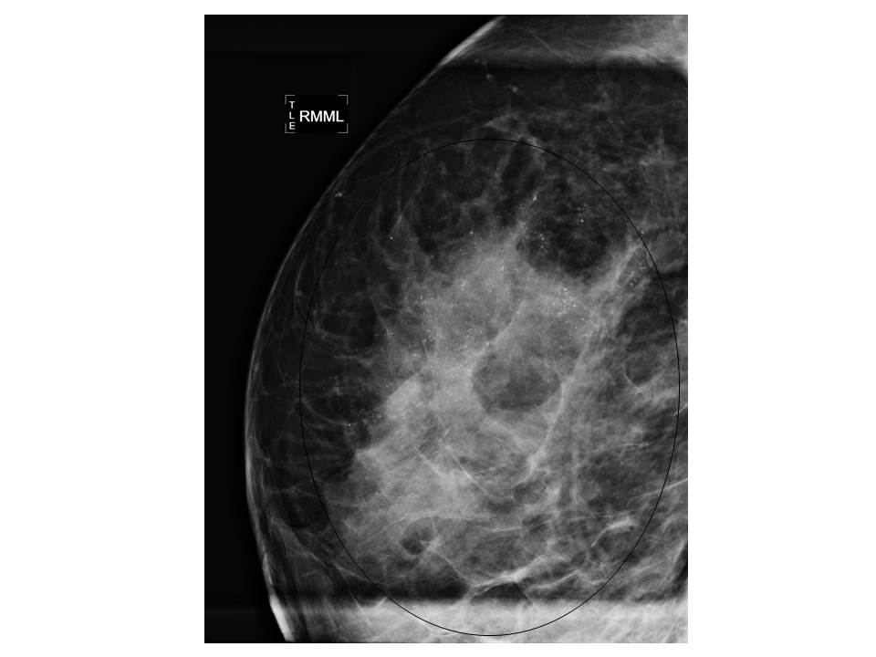 Stage 0 Breast Cancer Dcis Lcis Cancer Therapy Advisor
