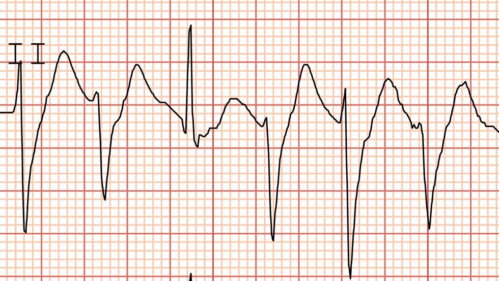 Ventricular Tachycardia Cancer Therapy Advisor