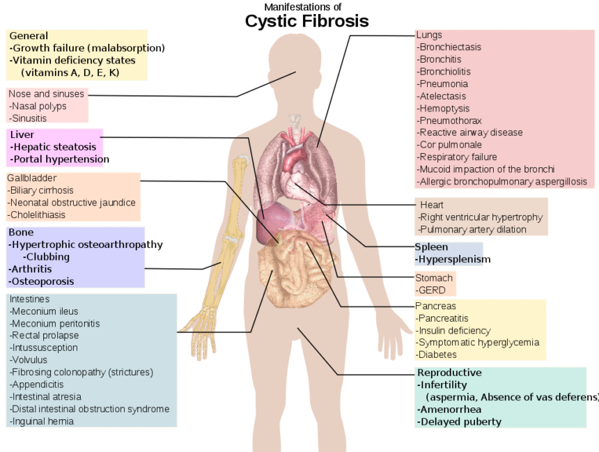Cystic fibrosis - Cancer Therapy Advisor