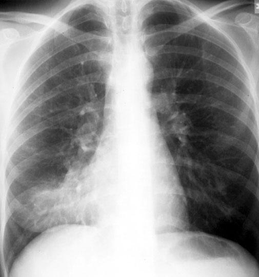pneumonia cancer