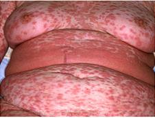 Adult juvenile rheumatoid arthritis (Still's disease