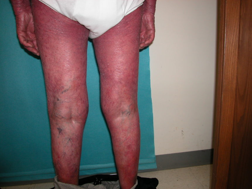 Exfoliative dermatitis (erythroderma) - Cancer Therapy Advisor