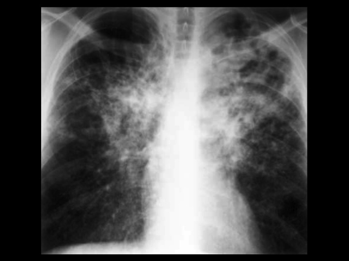 Tuberculosis - Cancer Therapy Advisor