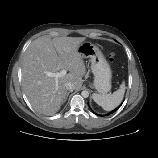 metastatic cancer elevated liver enzymes