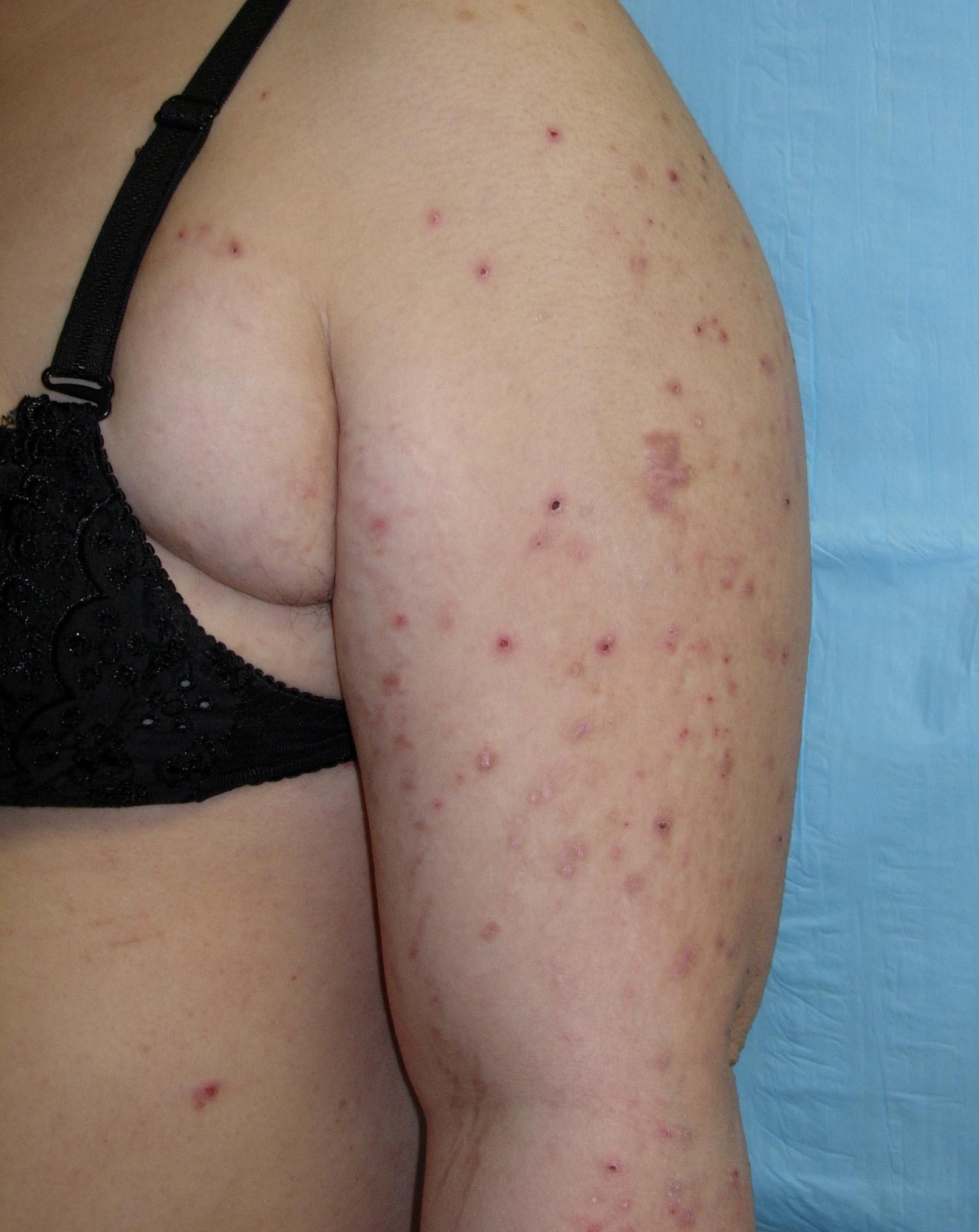 skin problems after pregnancy)