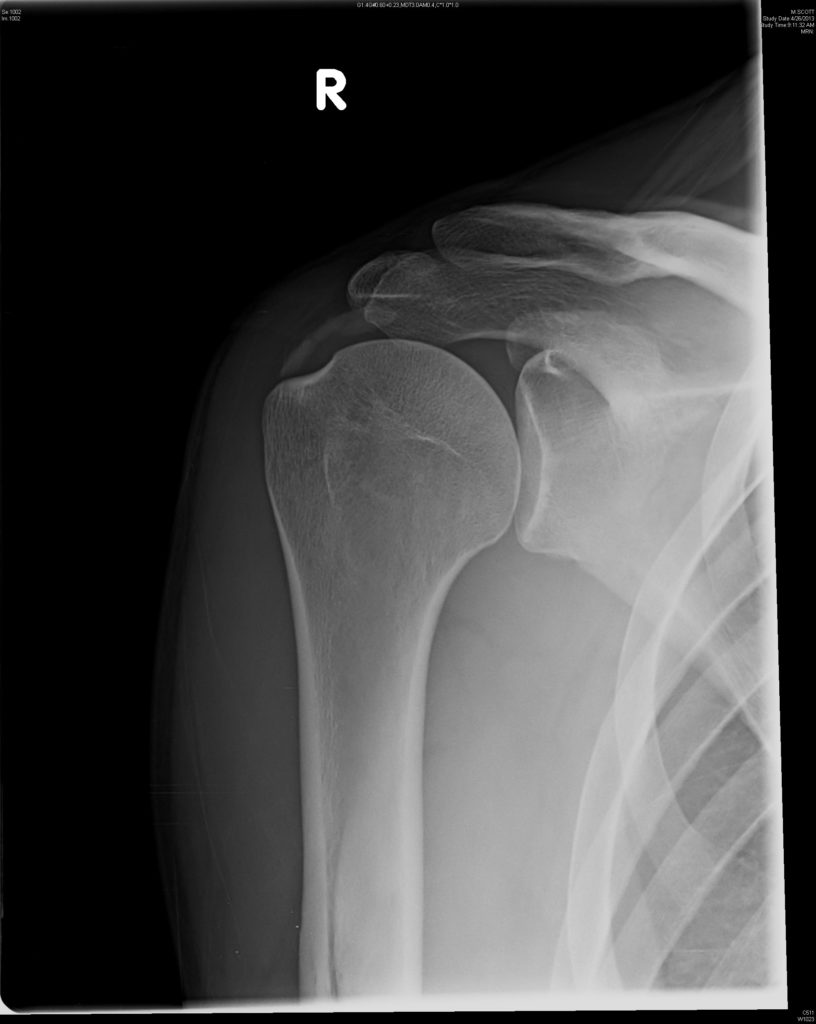 Evaluation And Management Of Calcific Tendinitis Cancer