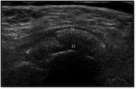 Evaluation and Management of Calcific Tendinitis - Cancer