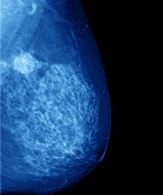 breast cancer surgery