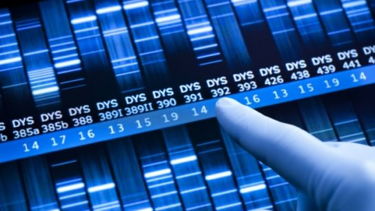 Genomic analysis of tumors and tests measuring certain biomarkers can be done in-house or sent out. What are the costs and benefits of each approach?