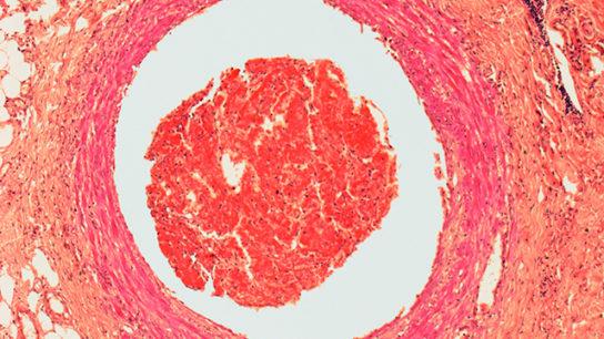 Blood clot, light micrograph