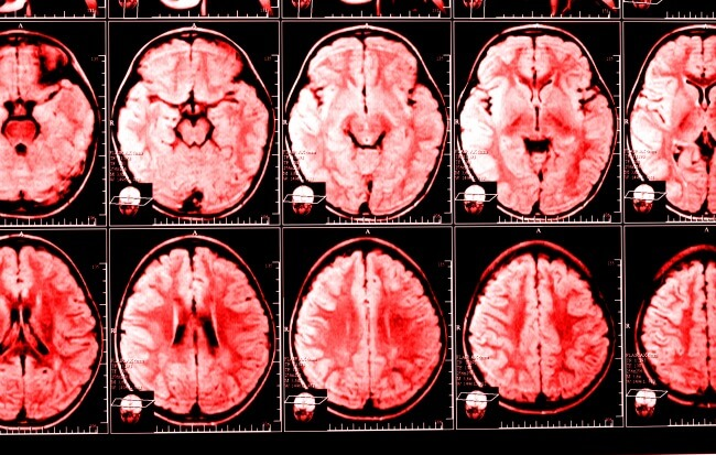 "Improvements to PFS and ""clinically meaningful reductions in daily corticosteroid use"" were said to be linked to the addition of bevacizumab in glioblastoma."