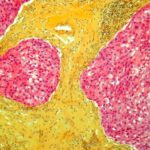An exceptional response to cetuximab in a patient with EGFR-amplified triple-negative breast cancer suggests EGFR copy number may help identify responders.
