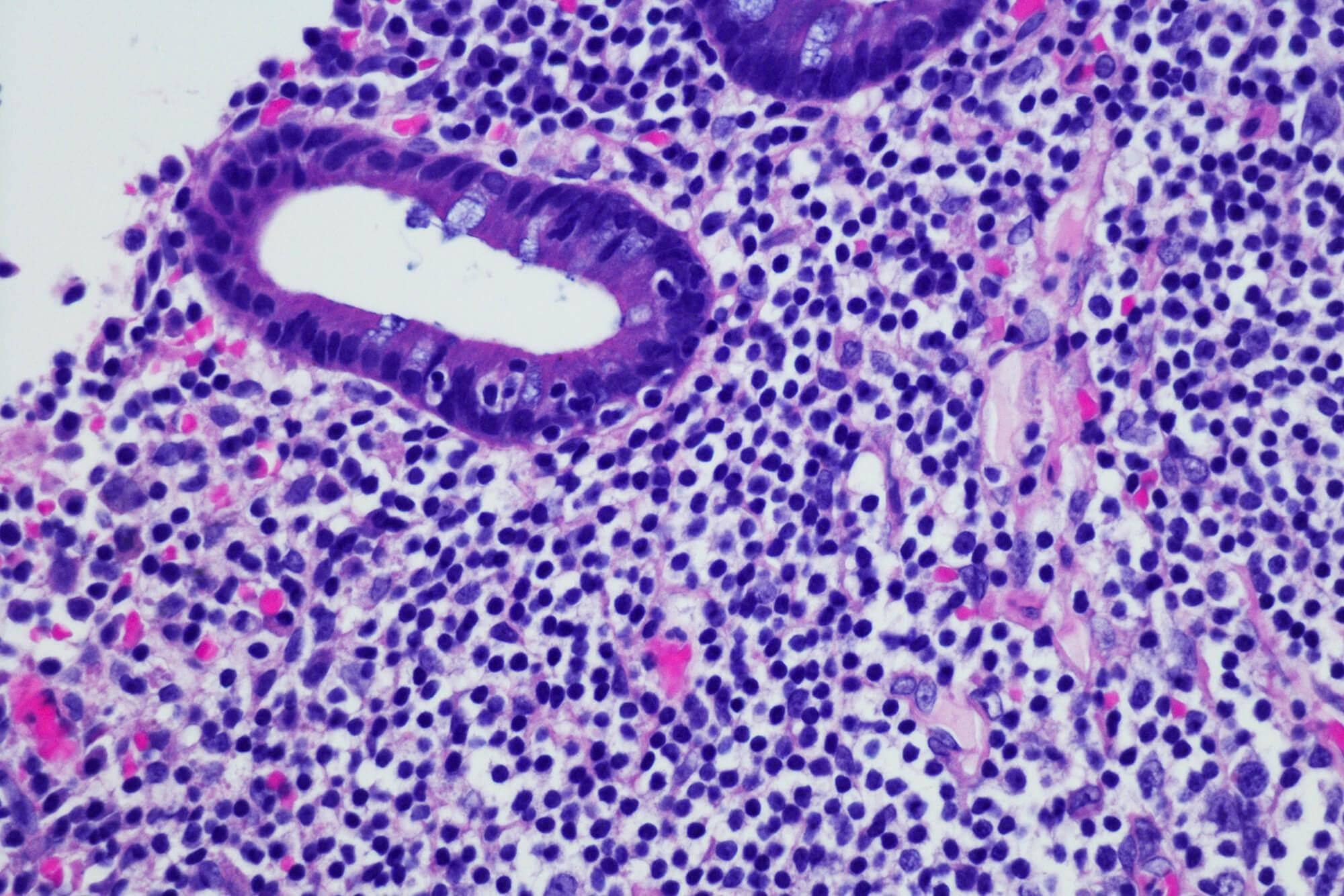 lymphoma - photo #22