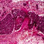 Researchers showed that survival in pancreatic cancer may be influenced by the tumor microbiome and that tumor growth can be influenced via fecal transplantation.