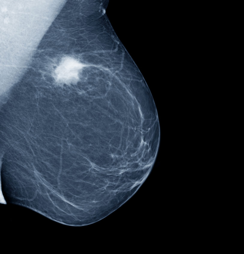 Lateral mammogram of female breast with tumor