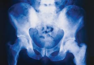 Bone Metastases