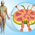 Lymph node in a man