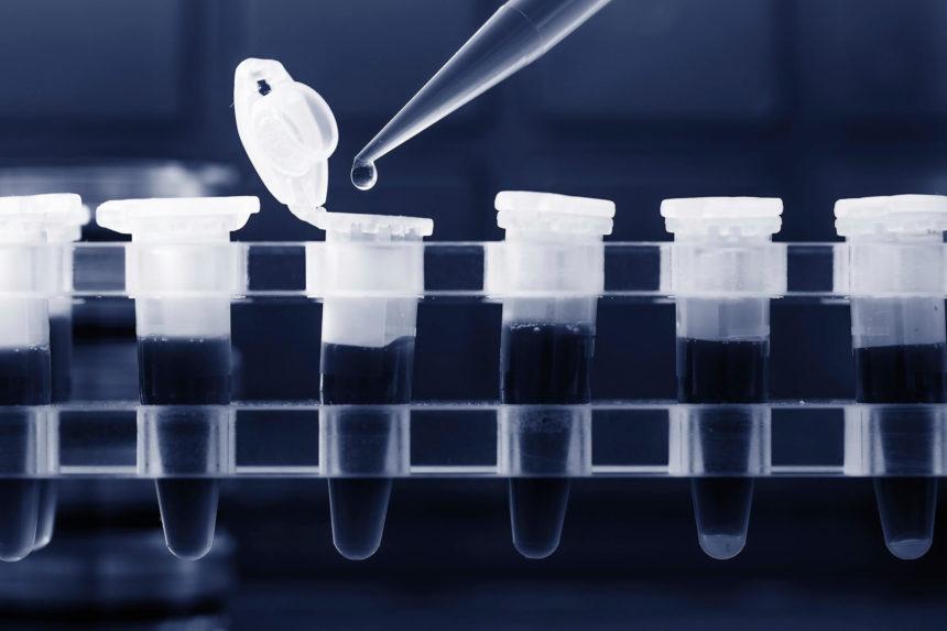 Novel molecular technologies for detecting minimal residual disease may offer prognostic value.