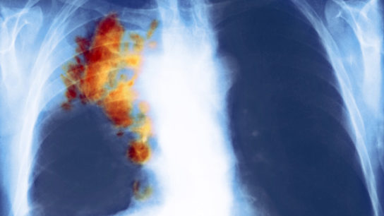 This frontal view x-ray of the chest shows advanced stage non-small cell lung cancer (NSCLC) of a 50-year-old woman with a long history of smoking and emphysema. The orange area depicts collapsed lung tissue at the base of the right lung, and the yellow area highlights a pleura-based density along the right hemithorax.