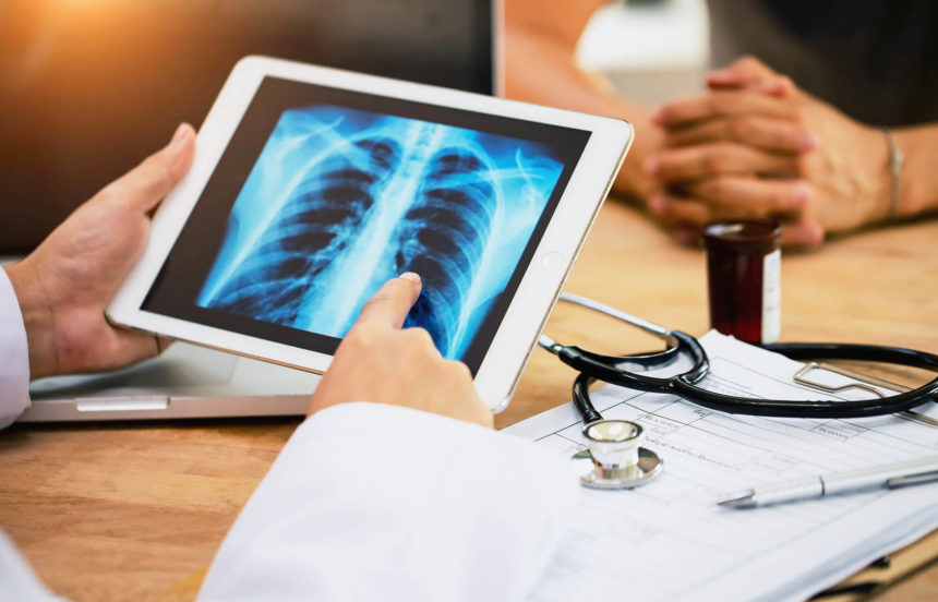An analysis finds that mortality rates for NSCLC are falling faster than incidence rates, which the authors attributed to the introduction of targeted therapies in 2013.