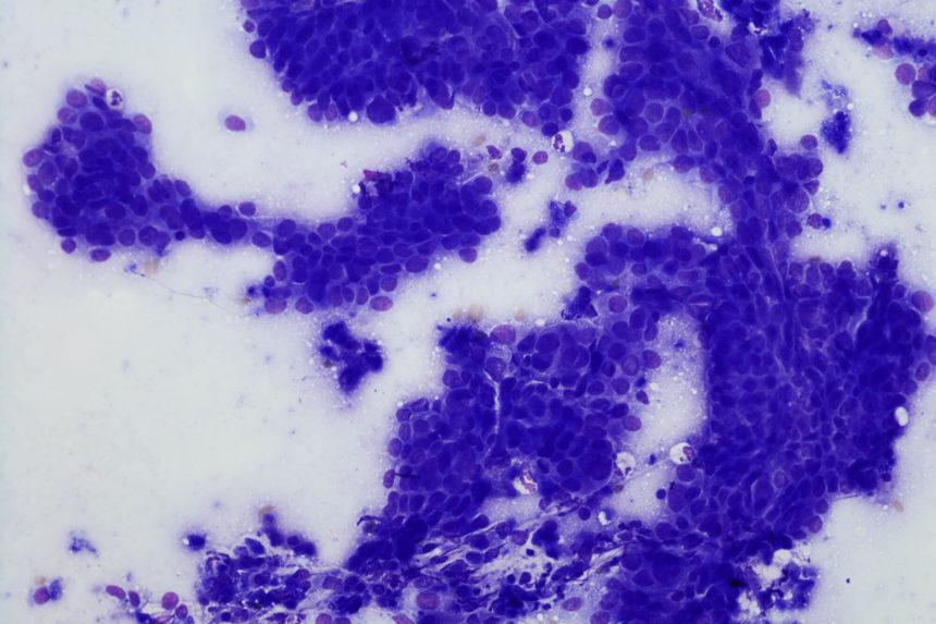 Cytology of esophageal adenocarcinoma.